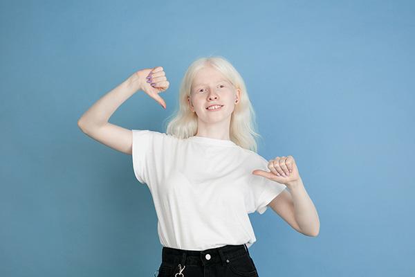 Albino o persona con albinismo
